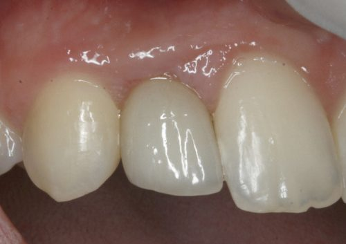 picture of teeth after a dental implant